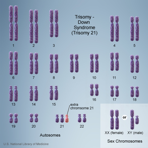 trisomy 21 down syndrome